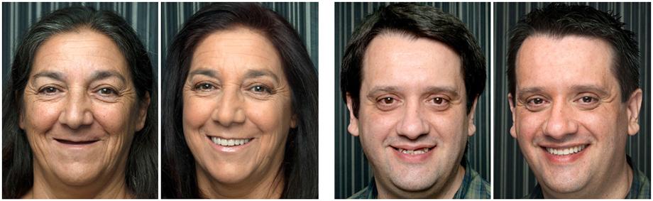 implantologia-dentale-prima-dopo-02