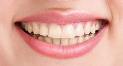 sbiancamento-dentale-lampada-led-zoom-bassano-asolo-castelfranco-2