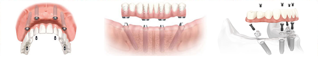 vantaggi-implantologia